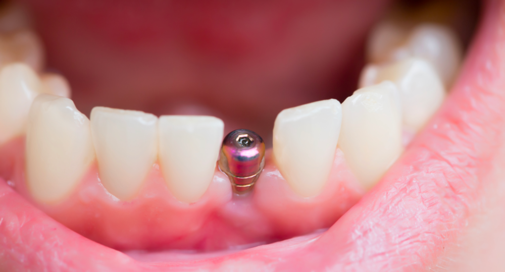 A dental implant post in someone's gums | Dental Implants Hershey PA