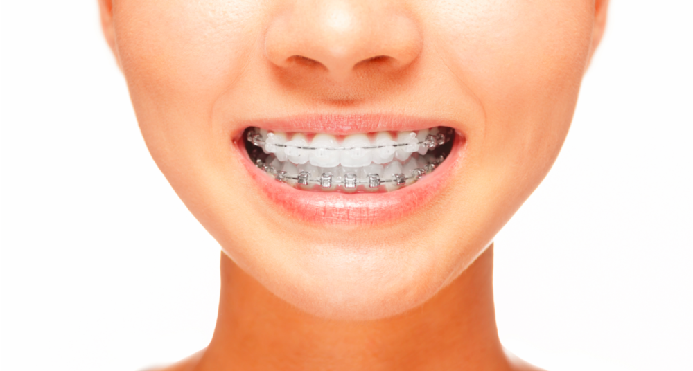 A woman smiles with braces | Orthodontics Hershey PA