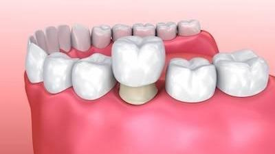 picture of dental crowns | Hershey PA
