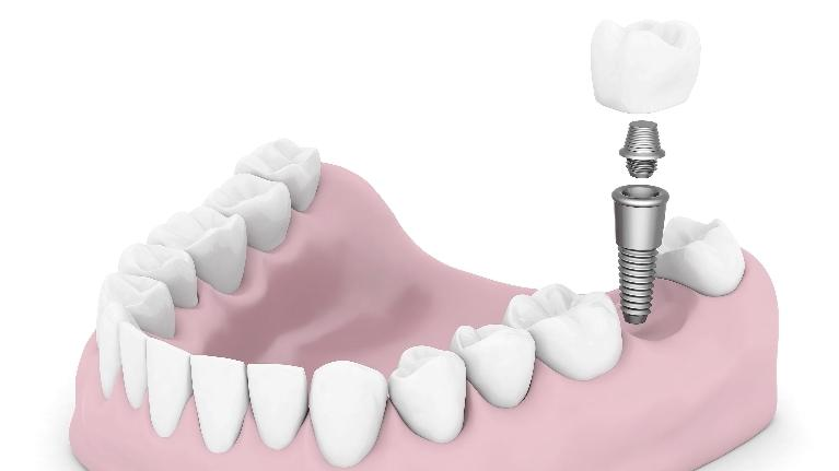 A diagram of a dental implant | Dental Implants Hershey PA
