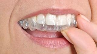 a person puts their invisalign aligner in place | Invisalign Hershey PA