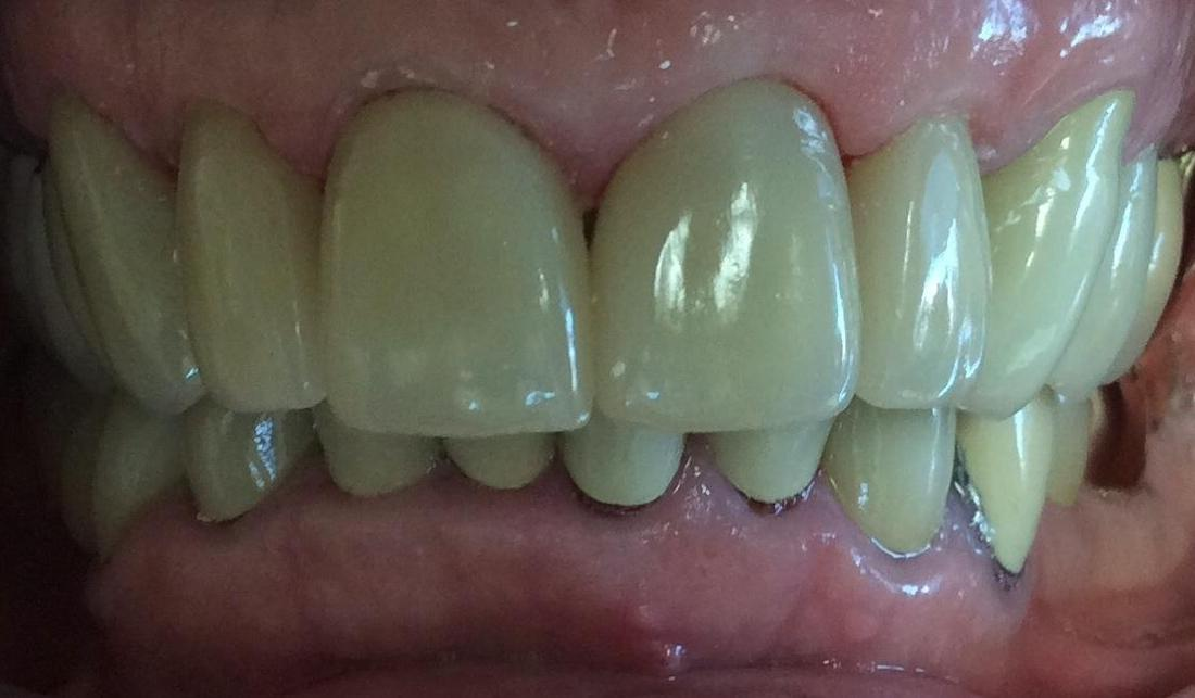 Image of the same teeth after dental crowns | Hershey PA
