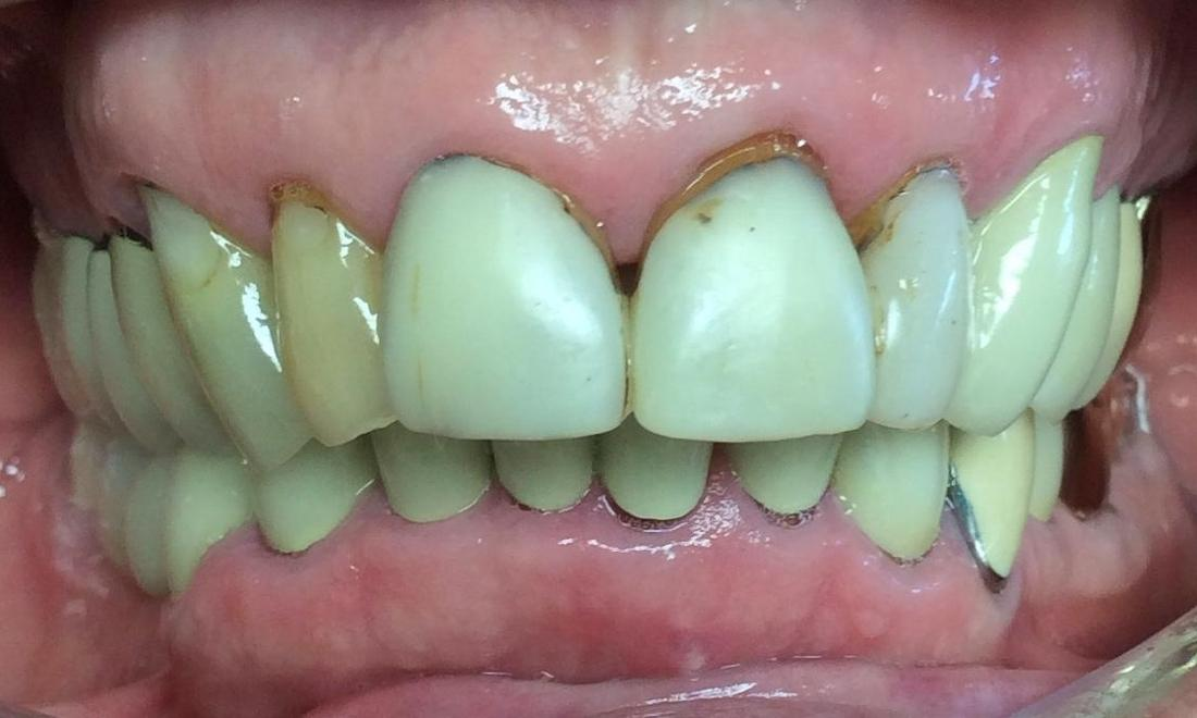 image of teeth before dental crowns | Hershey PA
