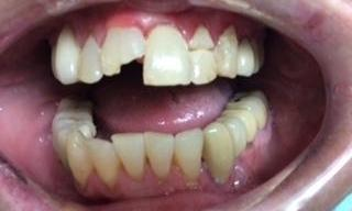 Dental-Trauma-Before-Image